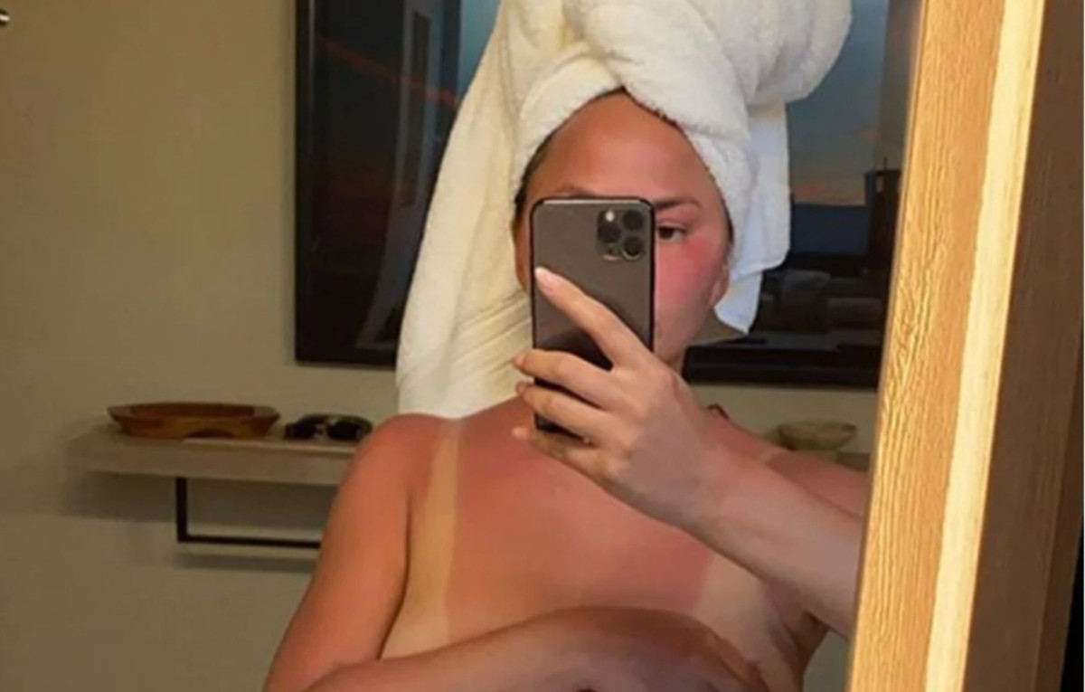 https://celebritycontent.com/2020/07/05/chrissy-teigen-reveals-severe-sunburn-and-implant-removal/